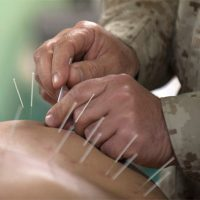 A complete guide to acupuncture for back pain