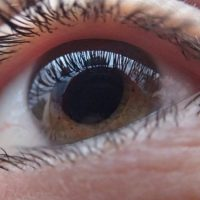 Top Cataract Prevention Tips
